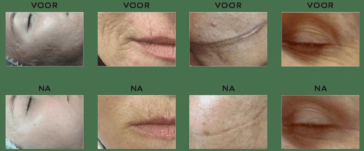 dermapen-treatment-voor-na